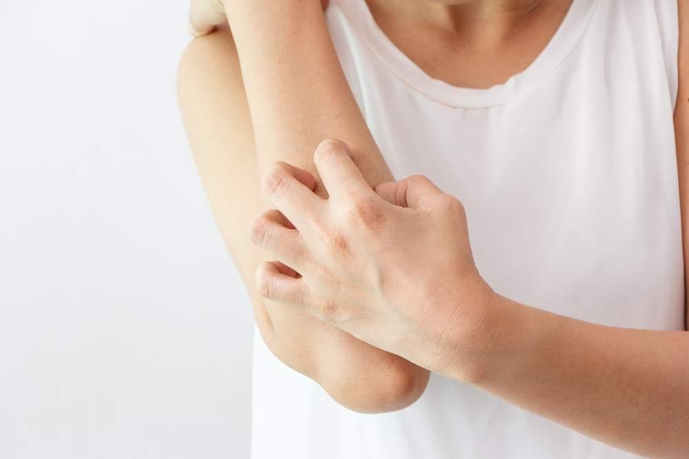 dermatite atopica, eczemi